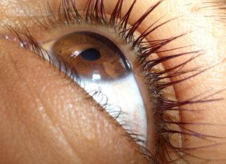 Jakie krople wybrać na suche oko